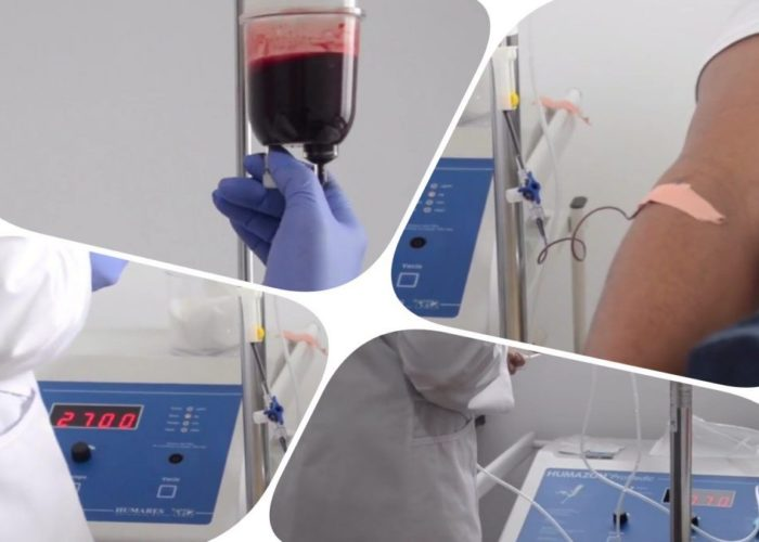 autohemoterapia ozono intravenoso